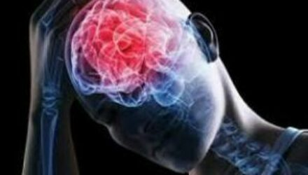 Ученые назвали факторы смертельного исхода после травмы мозга