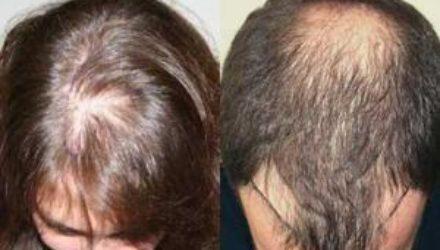 Исследование: к облысению приводят загрязняющие частицы на коже головы