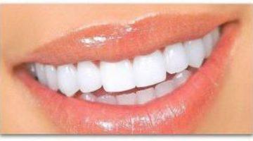 Как выпрямить зубы дома, не используя брекетов?