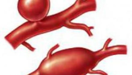 6 простых правил, чтобы избежать смертельной болезни сосудов