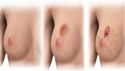 Риск рака груди можно узнать по уровню этого гормона