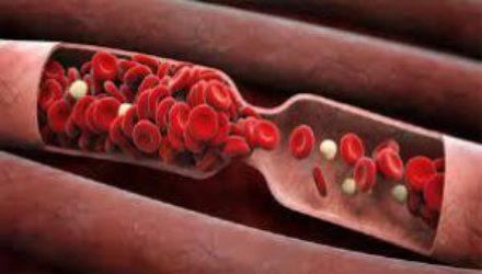 Молодая кровь признана универсальным лекарством против всех болезней
