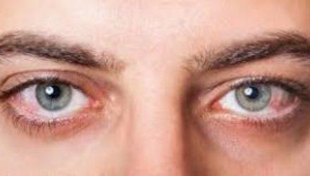 6 болезней глаз, которые провоцирует солнце