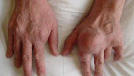 Подагра увеличивает риск смерти от инфаркта или инсульта