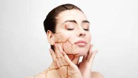 Хватит сохнуть: поможем коже избавиться от стянутости и шелушений