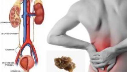 Симптомы мочекаменной болезни, которые нельзя игнорировать