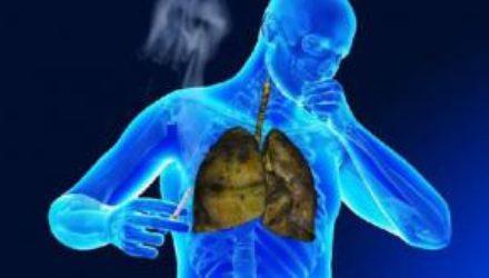 Виды рака, которым чаще всего болеют